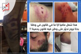 عناصر من الأجهزة الأمنية تعتدي بالضرب المُبرح على شاب من بيت لقيا