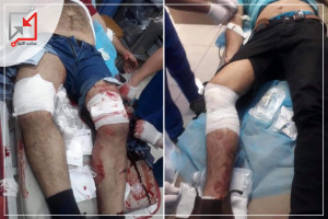 شاهد كامل التفاصيل : إصابة شابين برصاص الأجهزة الامنية في بيت لحم