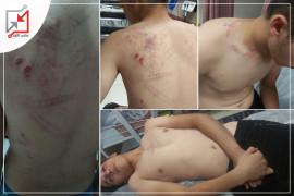 الأجهزة الأمنية تطلق النار و تعتدي على عدد من شبان مخيم بلاطة بالضرب المبرح .