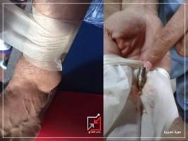 إصابة الشاب مراد دويكات بعيار ناري من قبل مجهولين .