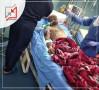 سلاح الفلتان الأمني يتسبب بإصابة الشاب/ محمد فضل الهروش إصابة خطيرة