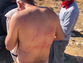 أربع إصابات للمزارعين جراء هجوم للمستوطنين في قرية برقة شرق رام الله