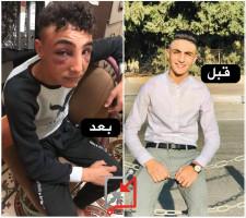 الشاب محمود نادر هارون من مخيم الامعري: قبل وبعد الاعتقال لدى الأجهزة الامنية