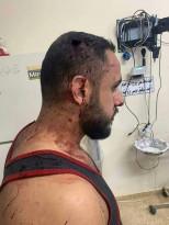 صورة لأحد المصابين جرّاء فض الأجهزة الأمنية لصلاة الجمعة بمسجدٍ في الخليل أمس