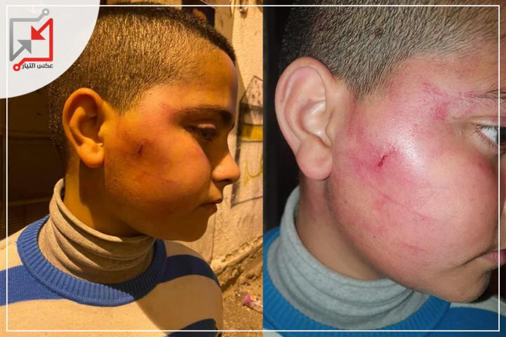 الأجهزة الامنية تعتدي على الأطفال في مخيم بلاطة